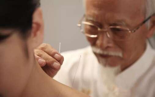 中医针灸师